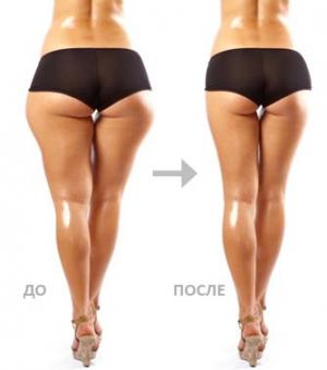 как похудеть попой и ляшками