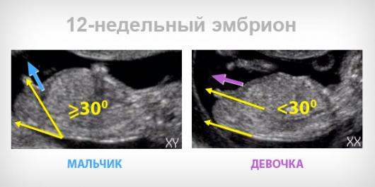Пол ребенка на 15 неделе беременности