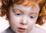 Рыжий ребенок может родиться у любой пары